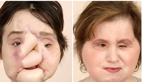 İntihar Etmeye Çalışırken Yüzünü Kaybeden ve Yüz Nakli Gerçekleştirilen Kızın Son Hali Görenleri Şaşkına Çevirdi