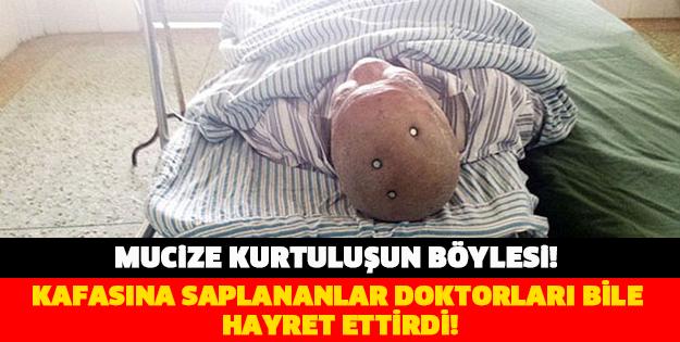KAFASINA SAPLANANLAR DOKTORLARI BİLE HAYRET ETTİRDİ!