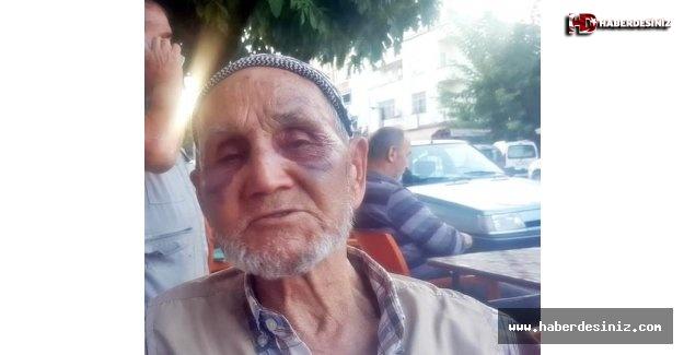 Böyle canilik görülmedi! 86 yaşındaki öz babasını tanınmaz hale getirdi!